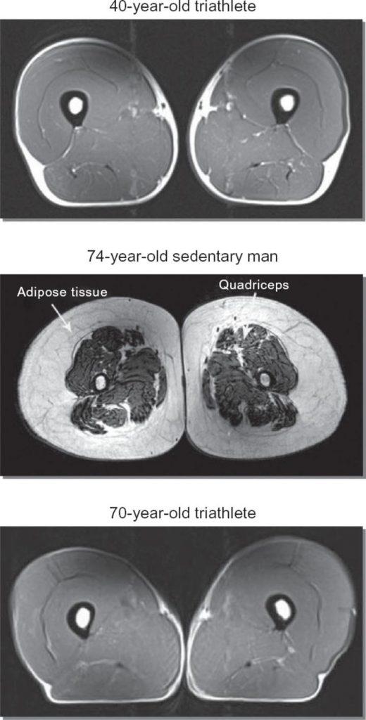 triathlete-vs-sedentary